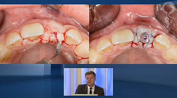 Key-factors for Success with implants in the esthetic zone